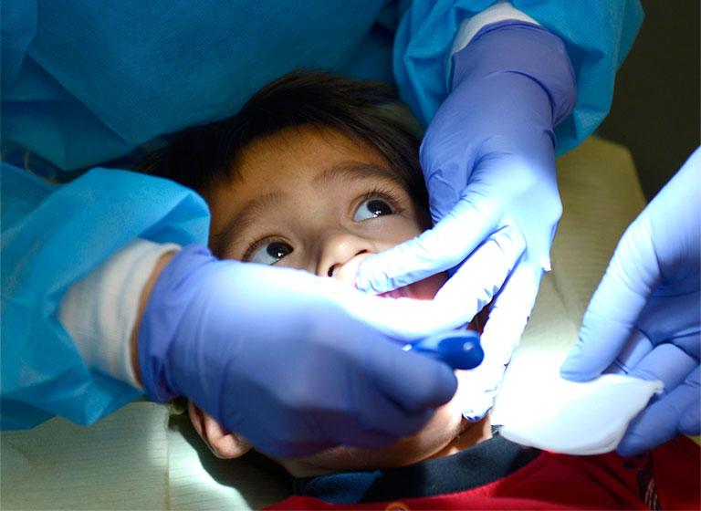 điều trị sâu răng sữa ở trẻ em