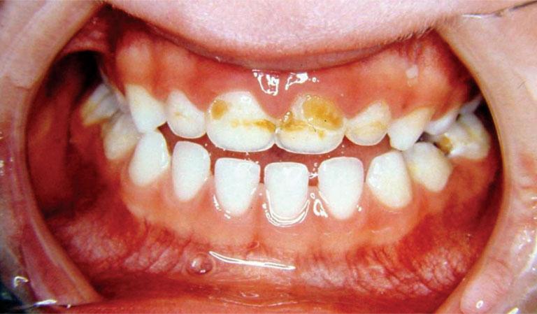 Trẻ 1 tuổi bị sâu răng