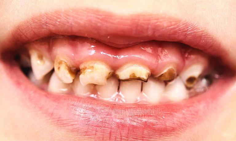 Sâu răng ở trẻ 2 tuổi