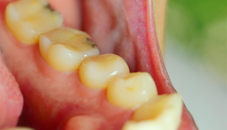 sưng nướu răng hàm