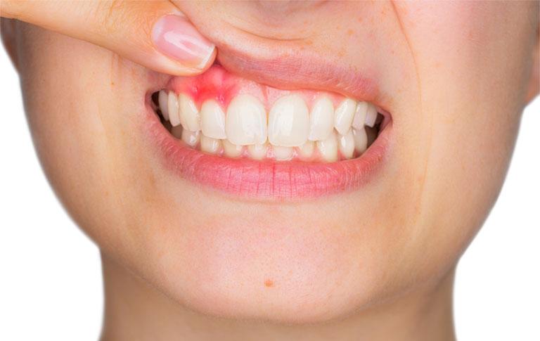 sưng chân răng