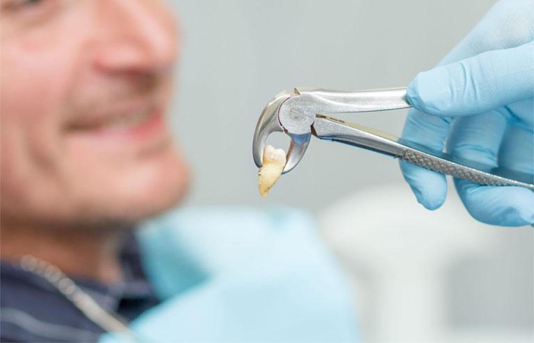 Cách trị sưng nướu răng trong cùng