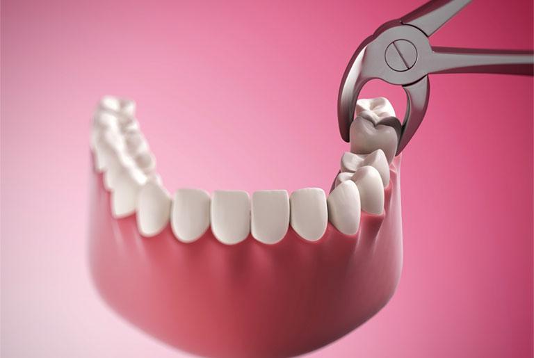 viêm chân răng có nhổ răng được không