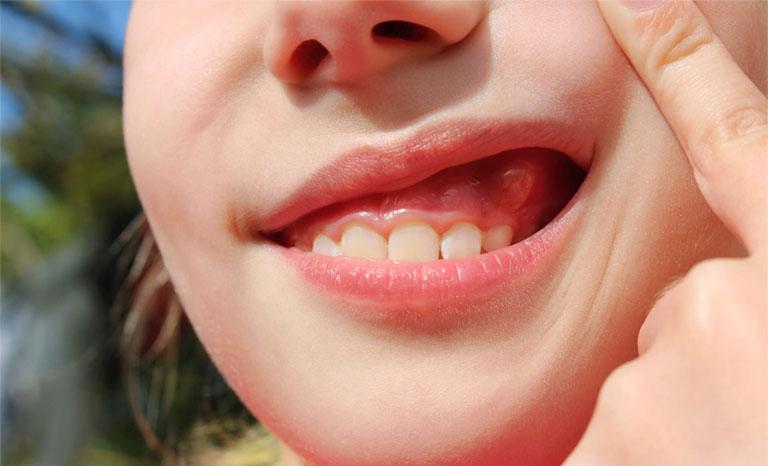 Hình ảnh viêm chân răng