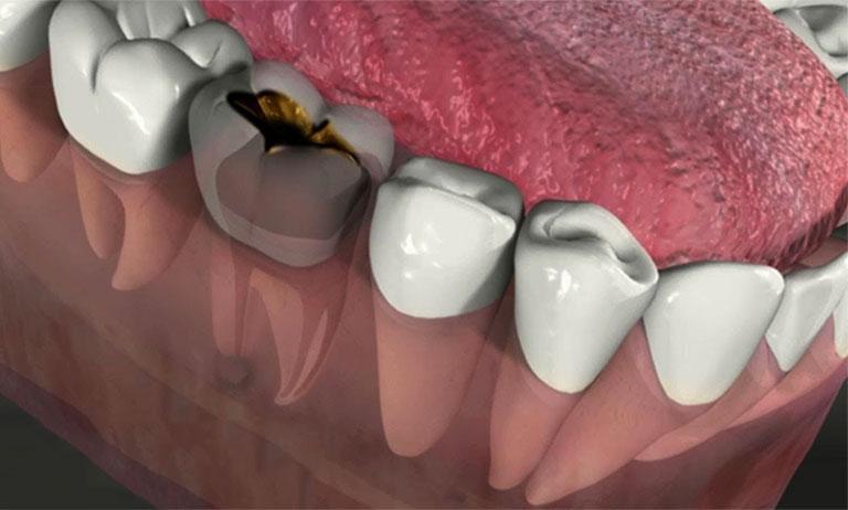 Sâu răng có mủ