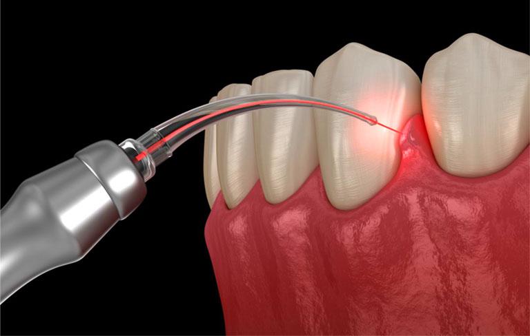 chữa nhiễm trùng chân răng