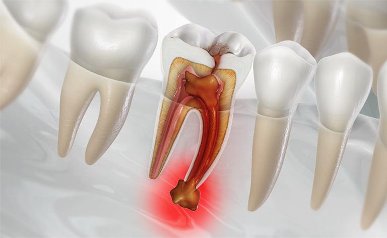 viêm chân răng chảy máu
