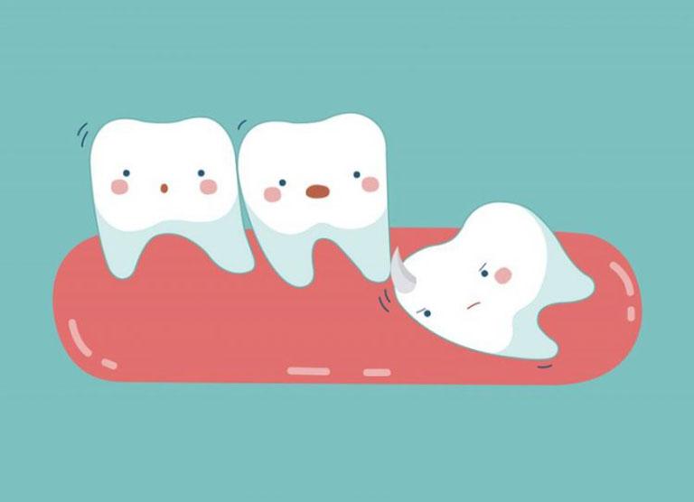 viêm lợi trùm răng khôn có mủ