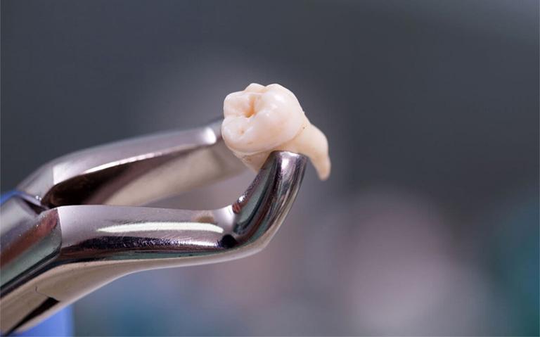 viêm lợi trùm răng khôn uống thuốc gì
