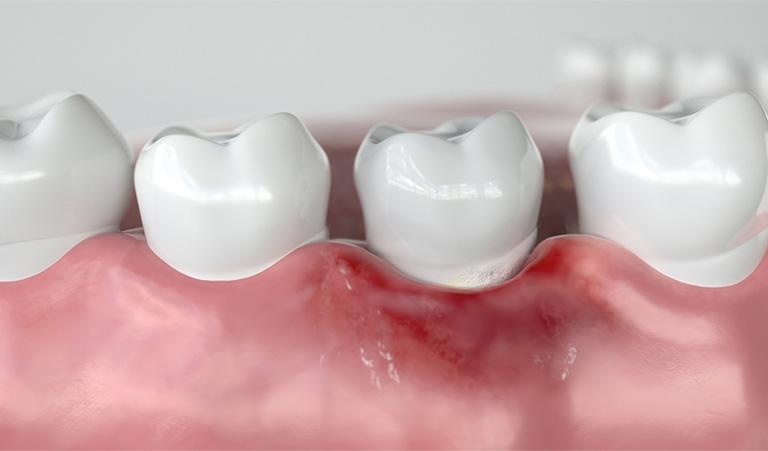 viêm nướu chân răng