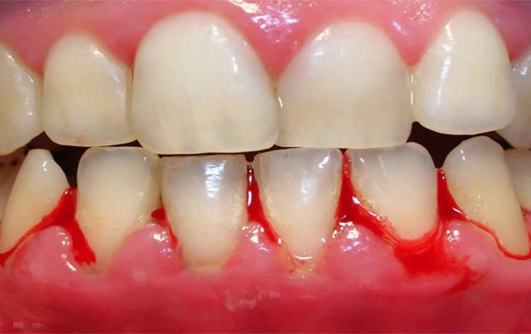 dấu hiệu viêm nướu chân răng