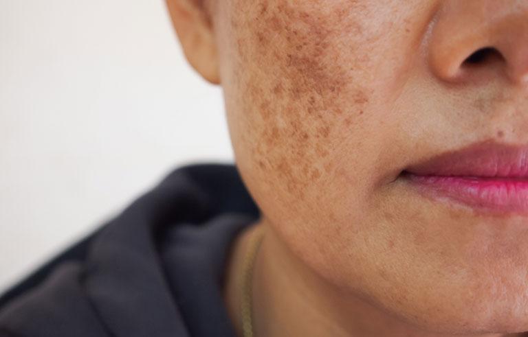 Xuất hiện đốm đen trên da mặt
