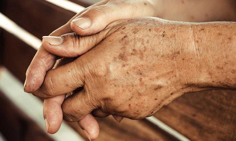 Xuất hiện đốm nâu trên da