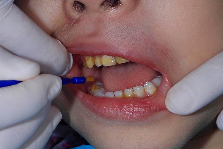 cách chữa sâu răng cho trẻ bằng flour