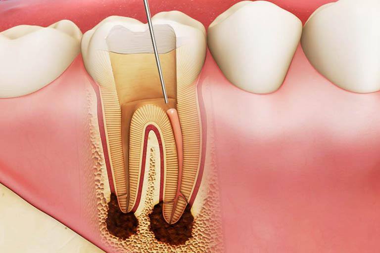 cách chữa sâu răng cho trẻ khi bị viêm tủy