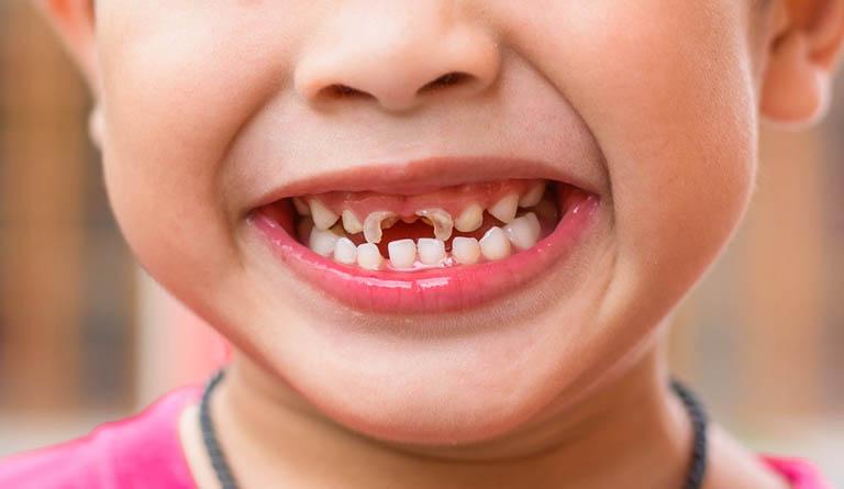 cách chữa sâu răng cho trẻ