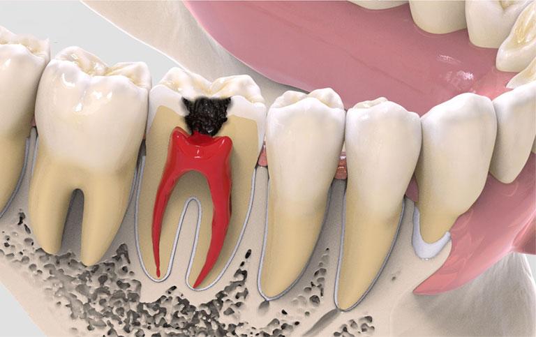con sâu răng gây sâu răng