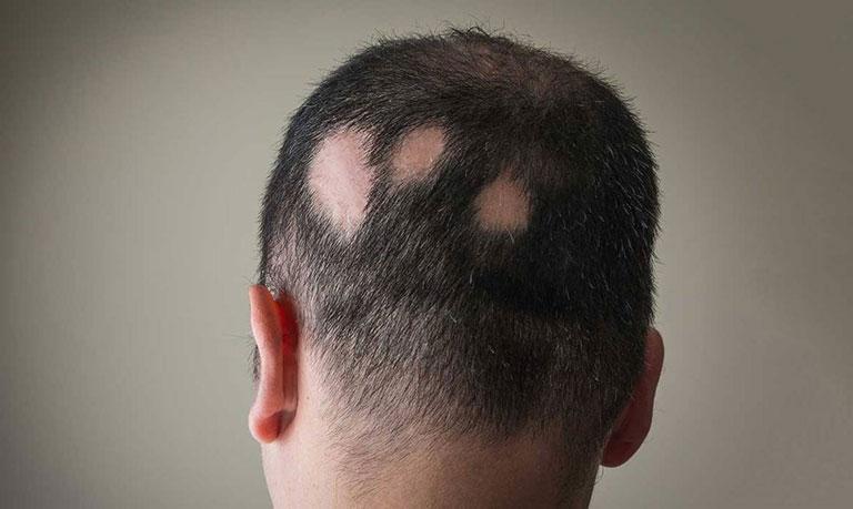 đau da đầu là bệnh gì