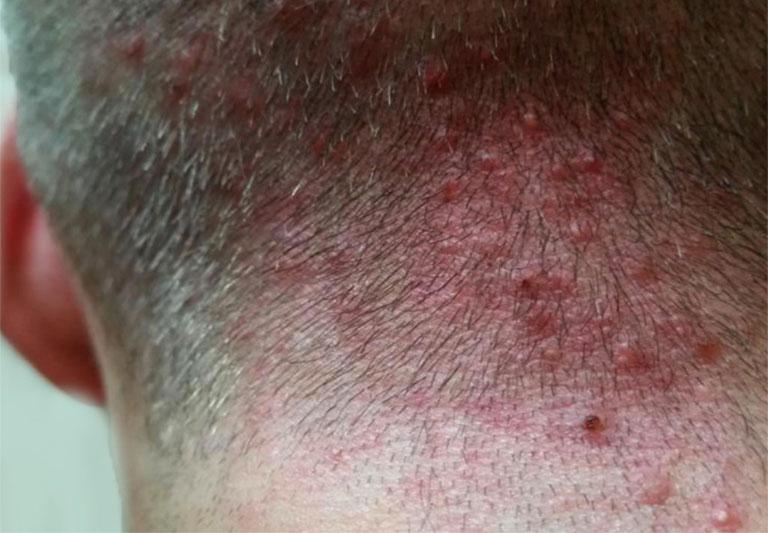tại sao bị đau da đầu