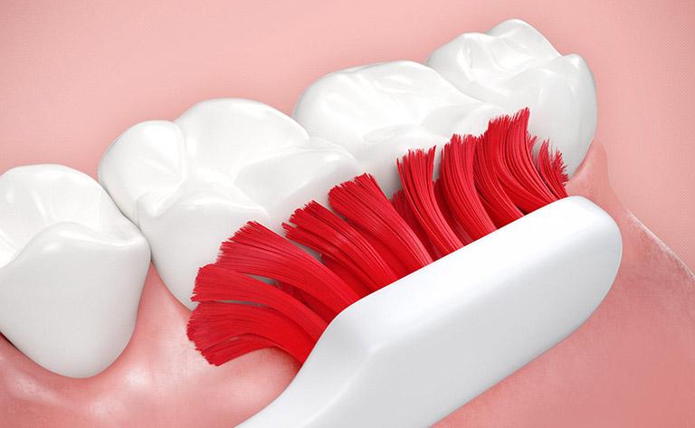 bị đau kẽ răng