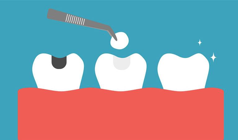 điều trị đau răng tại nhà