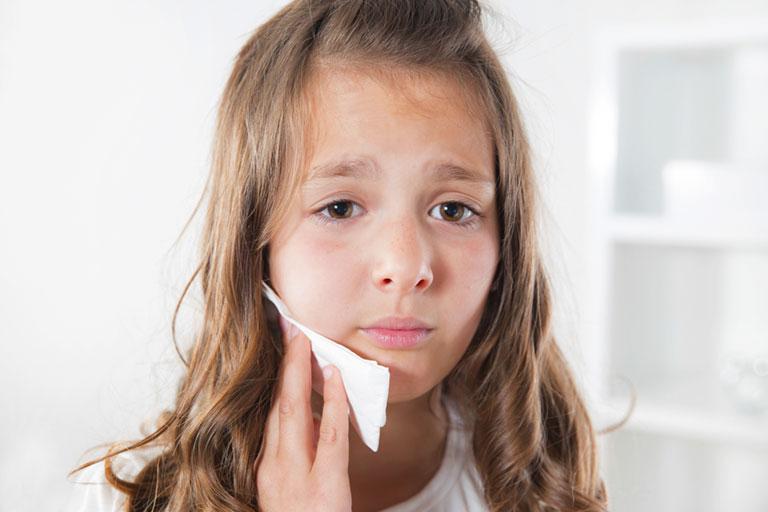 Đau răng ở trẻ em