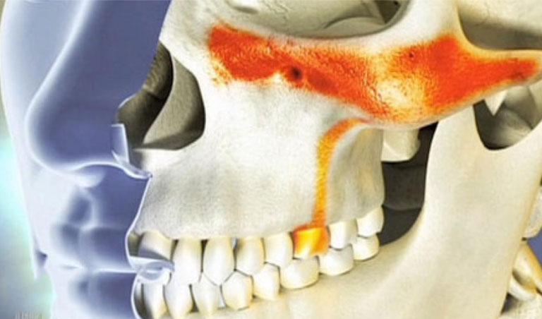 Tại sao hay nhức răng vào ban đêm