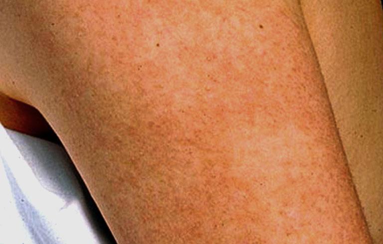 dấu hiệu của bệnh dày sừng nang lông