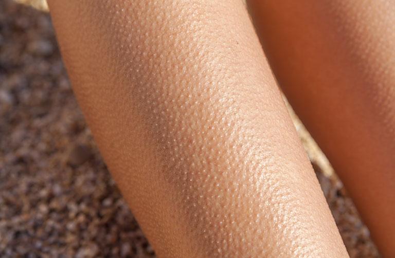 chữa bệnh dày sừng nang lông