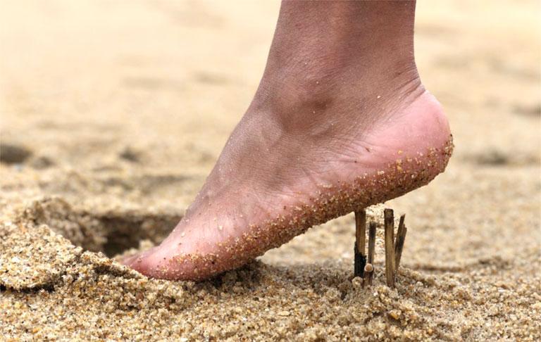 Bị gai gót chân có nên đi bộ