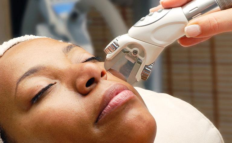 cách trị nám tàn nhang đồi mồi bằng laser