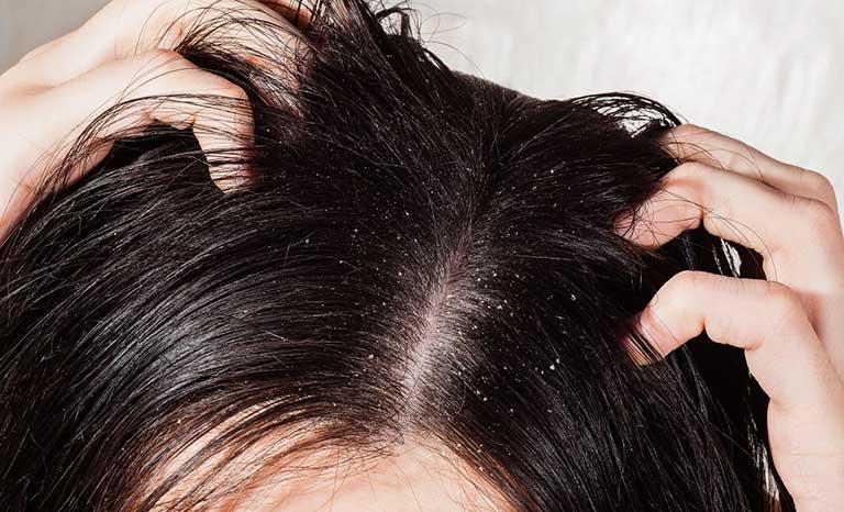 Nấm tóc