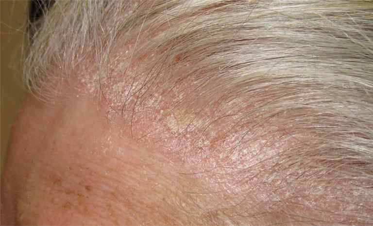ngứa da đầu là bệnh gì
