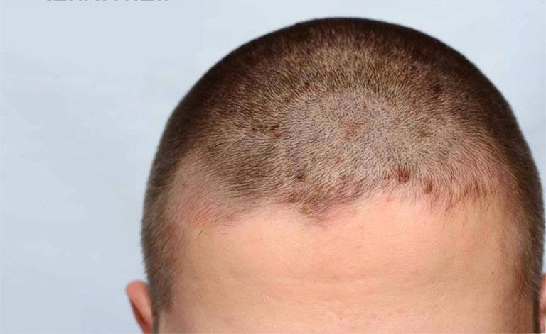 Nấm da đầu gây ngứa
