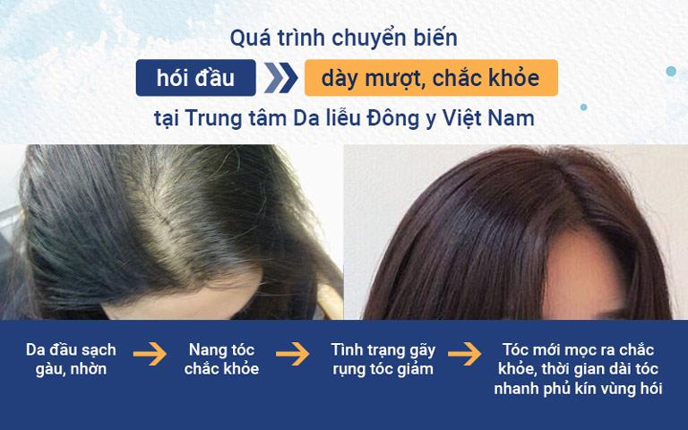 Mái tóc có nhiều chuyển biến tích cực sau khi điều trị