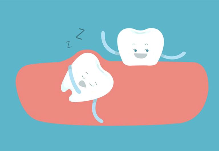 tại sao răng khôn lại mọc