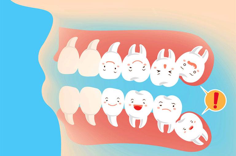 răng khôn mọc lệch đâm vào má