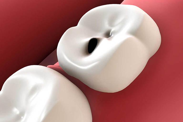 răng sâu nhẹ