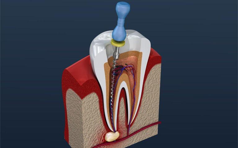 điều trị sâu chân răng như thế nào