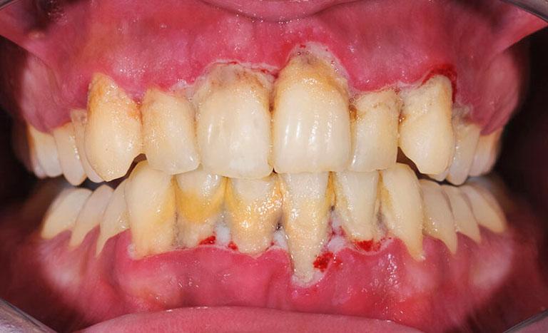 Sâu kẽ chân răng