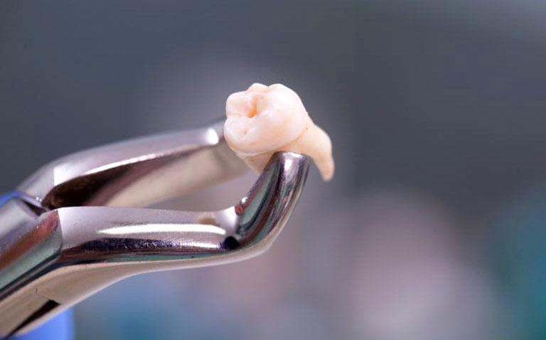 nhổ răng sâu lồi thịt