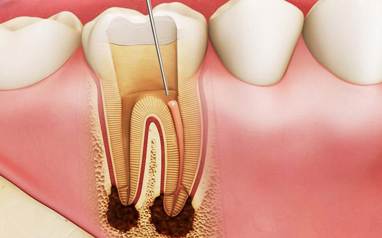 sâu răng vào tủy nguy hiểm không