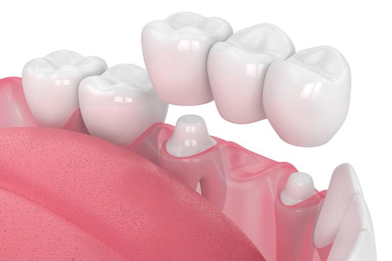 phục hồi sâu răng vào tủy