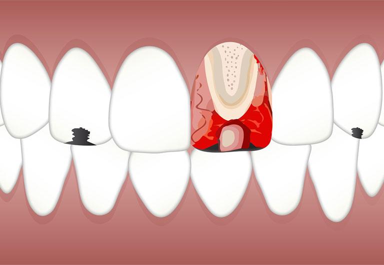 nguyên nhân bị sưng nướu răng