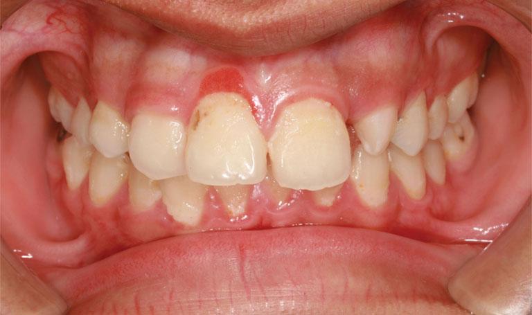Đau răng nổi hạch