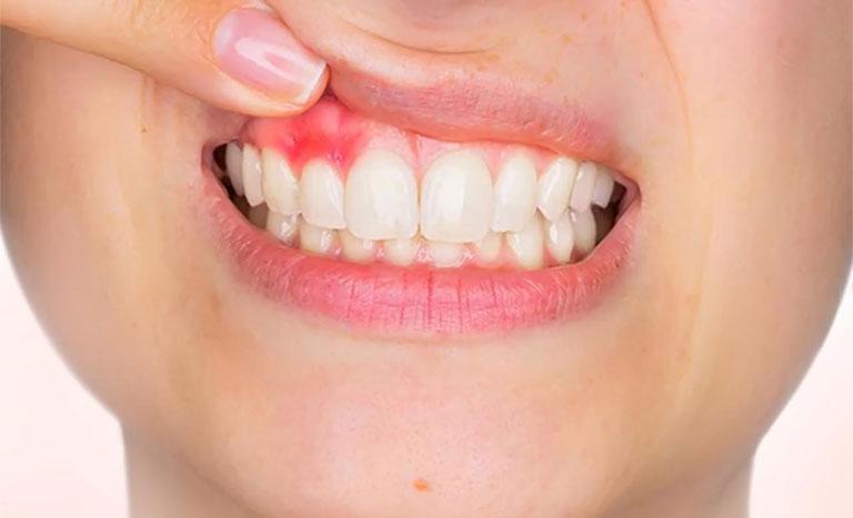 sưng nướu răng và nổi hạch có nguy hiểm không