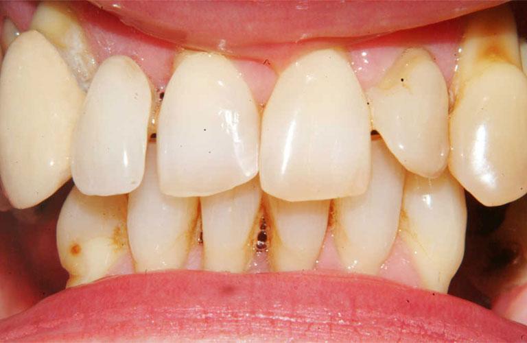 Viêm nướu răng cửa