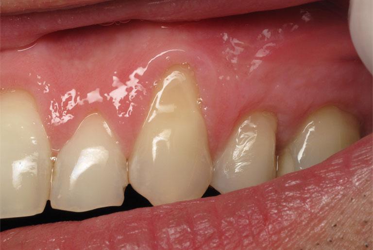 viêm lợi trùm răng cửa