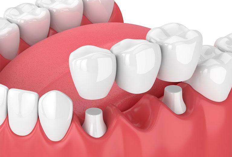 Chảy máu chân răng sau khi bọc răng sứ