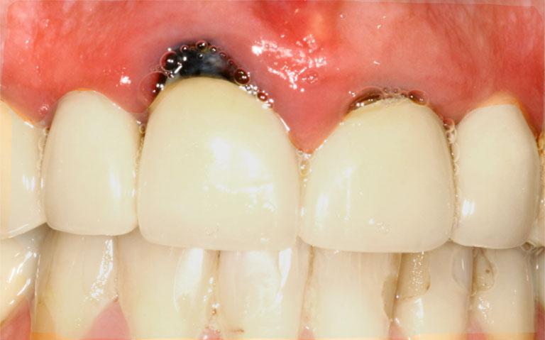 Bọc răng sứ bị nhiễm trùng